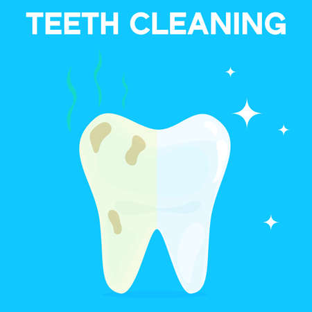 Teeth cleaning, whitening or bleaching vector illustration. Concept of dental healthcare, stomatology care, professional tooth whitening service.
