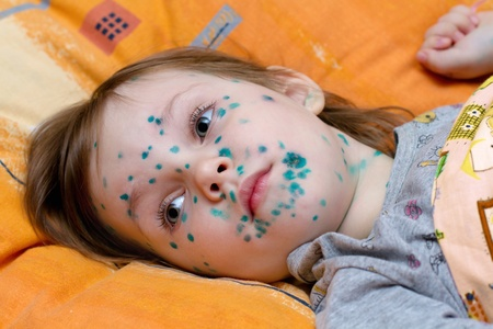 The girl suffers chickenpox photo