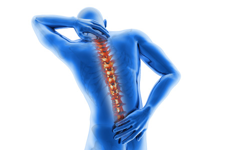 Spine pain - vertebrae trauma Stock Photo