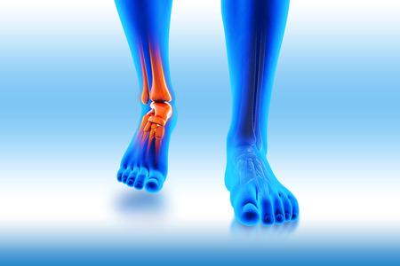 enhanced healthy: Ankle pain - hurt trauma