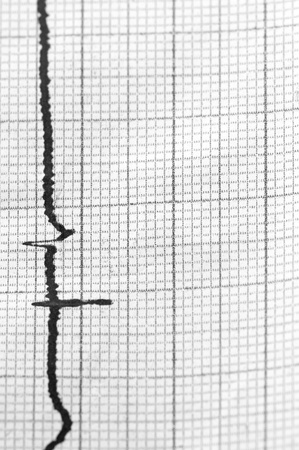 Close-up of cardiogram as background. Monochrome B&W image. photo