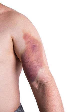 hematoma: large bruise on mans arm