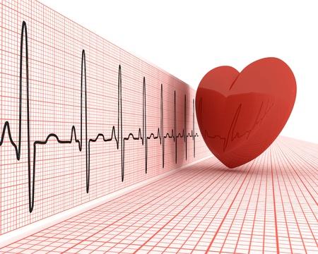 The heart cardiogram