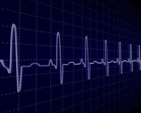 heart ecg trace: Stock Photo: cardiogram Stock Photo
