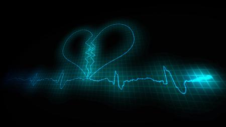 Heart Attask. Cardiogram of a diseased heart