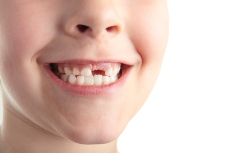 A young boy showing off his new gap. Stock Photo