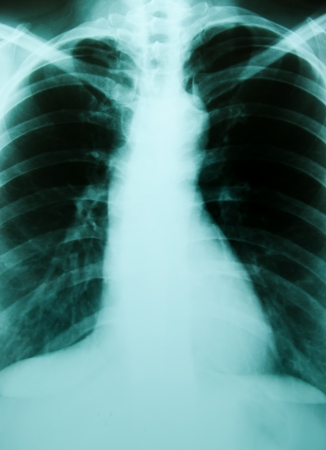 A chest x-ray image for a medical diagnosis   photo