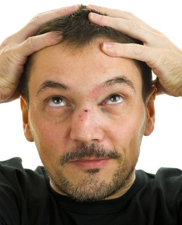 man with crooked, broken nose and black eye isolated on white photo
