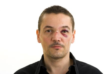 unequal: man with broken, crooked nose and black eye isolated on white