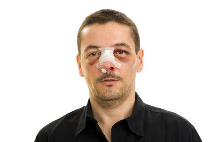 boxing tape: broken nose and black eyes post operation Stock Photo