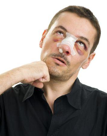 코 수술 후 부러짐