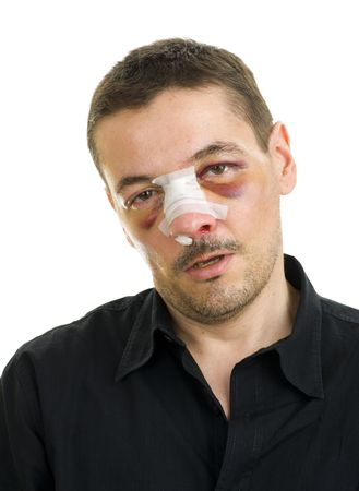 unequal: posterior operaci�n de nariz rota Foto de archivo