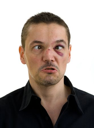 unequal: man with broken, crooked nose and black, crossed eyes, isolated on white