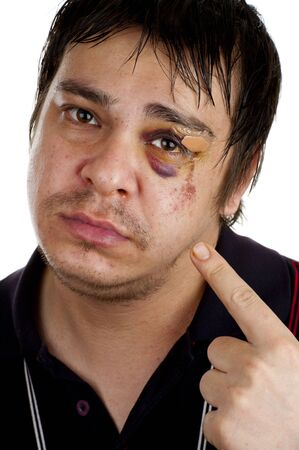 man pointing at his black eye, isolated on white back ground photo