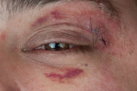 close-up of a stitched wound next to a man's eye photo