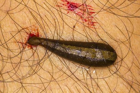 sanguisuga: sanguisuga pollone sangue sulla pelle umana