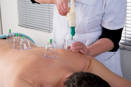 medieval medicine: Cupping or Bekam Hijamah is traditional treatment
