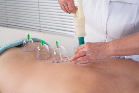 cupping therapy: Medical Hijama cupping therapy on human body Stock Photo