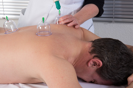 Medical Hijama cupping therapy on human body Stock Photo