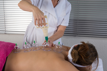 cupping glass cupping: A therapist removing a glass globe in a fire cupping procedure