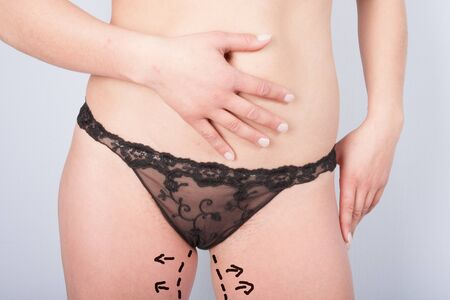 Female hips and panties before plastic surgery Stock Photo