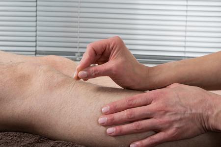 gall: Man Undergoing Acupuncture Treatment- Gall bladder