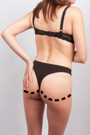 buttock: Womans buttock prepared to plastic surgery