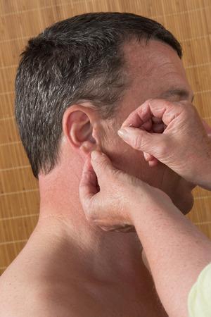 female large intestine: Acupuncturist prepares to tap needle around ears of man