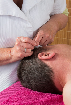 female large intestine: Acupuncturist prepares to tap needle on mans ear