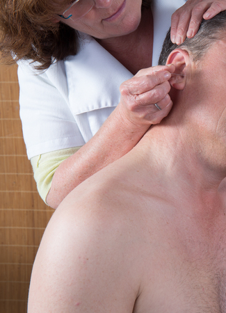 ear acupuncture: Woman acupuncturist prepares to tap needle around ears of man Stock Photo