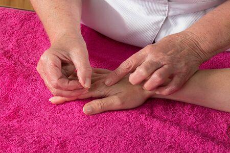 acupuncturist: Detalle de acupunturista colocando una aguja en la mano del paciente