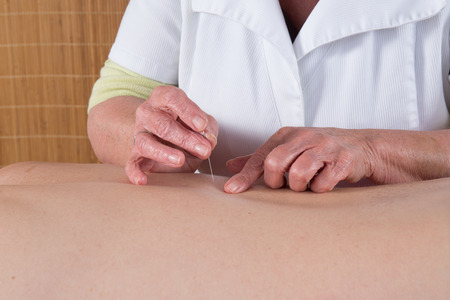 female large intestine: Acupuncturist prepares to tap needle into patients skin