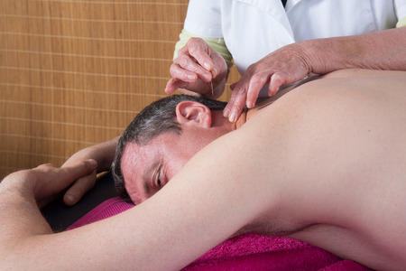 acupuncturist: Woman acupuncturist prepares to tap needle into ears of man