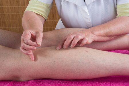 female large intestine: Woman acupuncturist prepares to tap needle on scarf of a man Stock Photo