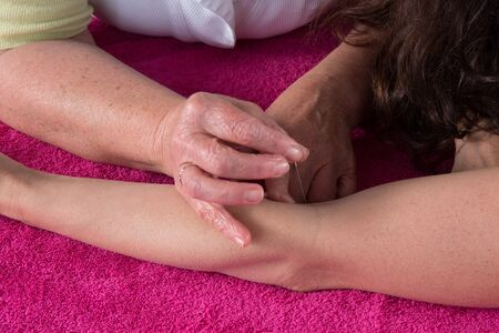 acupuncturist: Detail of acupuncturist placing a needle in hand of the patient
