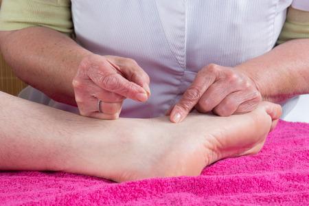 acupuntura china: Acupunturista prepara para aprovechar la aguja en el pie de un hombre
