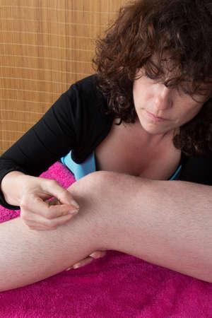 acupuncturist: Mujer acupunturista prepara para aprovechar la pierna del hombre