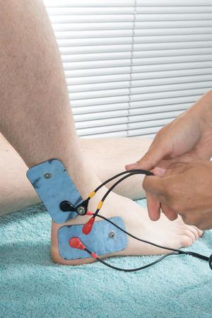electrode: stimulation by electrode