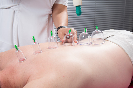 acupuncture: Detail of an acupuncture therapist removing a plastic  globe in a  cupping procedure