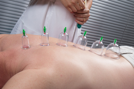 cupping therapy: Multiple vacuum cup of medical cupping therapy on human body