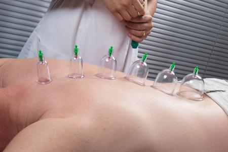 Ventouse multiple de thérapie ventouses médicale sur le corps humain Banque d'images - 41020528