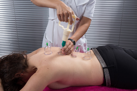 At spa center cupping, chinese medecine