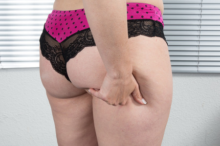 big ass: Woman showing Cellulite - bad skin condition Stock Photo