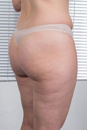 loose weight: Woman showing her cellulite - need to loose weight