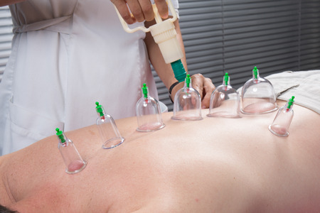 Cupping therapy, spa, woman doctor removes cups from the patient's back Standard-Bild