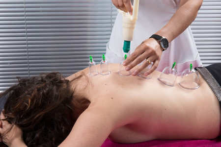 cupping therapy: Cupping therapy, spa, woman doctor removes cups from the patients back Stock Photo