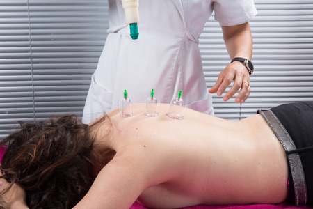 Cupping therapy, spa, woman doctor removes cups from the patients back Stock Photo
