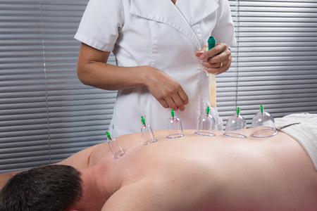 cup: Cupping therapy, spa, woman doctor removes cups from the patients back Stock Photo