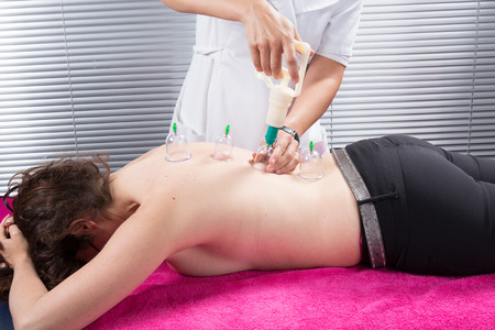 cupping glass cupping: Cupping therapy, spa, woman doctor removes cups from the patients back Stock Photo