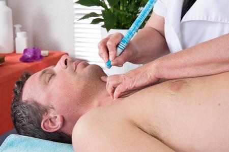 moxa: Alternative medicine therapist doing moxa treatment on her client Stock Photo